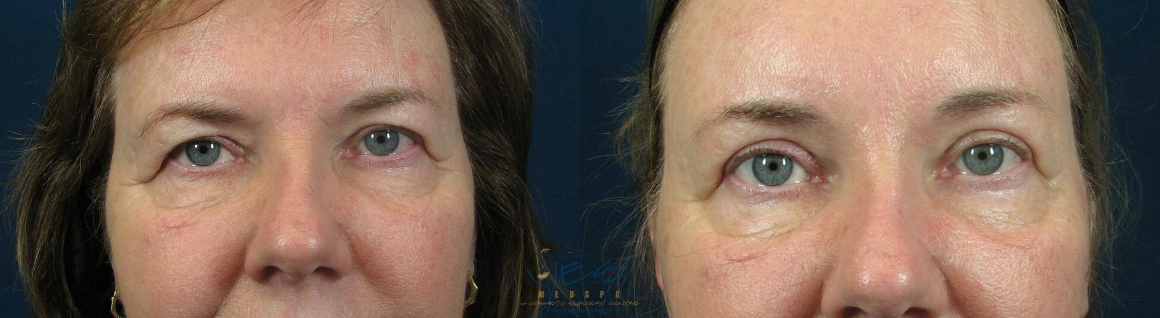 Upper Eyelid Blepharoplasty Case 59 Before & After View #1 | Langley, BC | YES Medspa & Cosmetic Surgery Centre