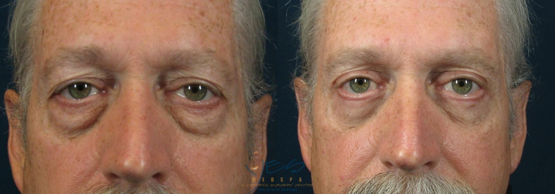 Upper Eyelid Blepharoplasty Case 89 Before & After View #1 | Vancouver, BC | YES Medspa & Cosmetic Surgery Centre