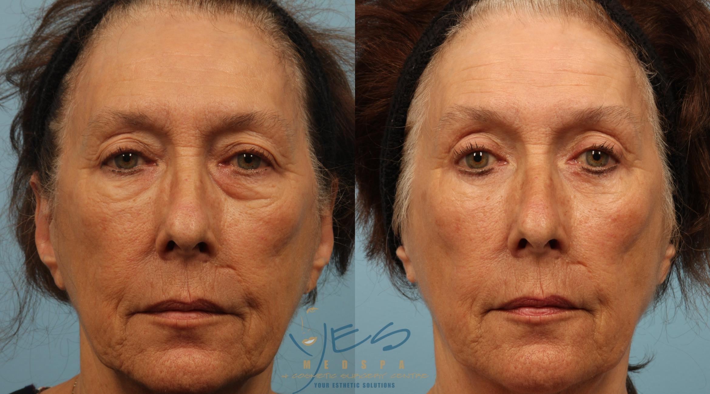 Upper Eyelid Blepharoplasty Case 287 Before & After Front | Vancouver, BC | YES Medspa & Cosmetic Surgery Centre