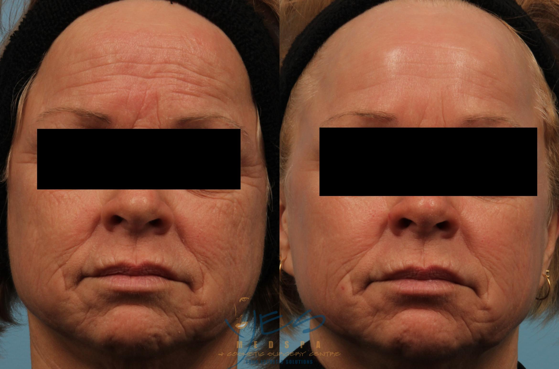 Venus Legacy Case 226 Before & After View #3 | Langley, BC | YES Medspa & Cosmetic Surgery Centre